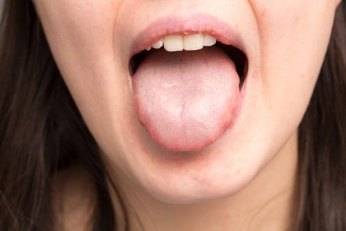 Clove for oral health